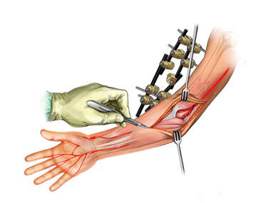 Injury to the Arteries of the Arm