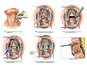 Disc Herniation with Anterior Cervical Fusion