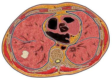 Cross Section of Thorax - Pathology