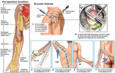 Arthroscopic Repair of Frozen Shoulder