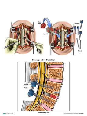 Lumbar Laminectomy and Surgical Fusion (L4-5)