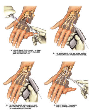 Reconstruction of the Metacarpals and Tendons of the Hand
