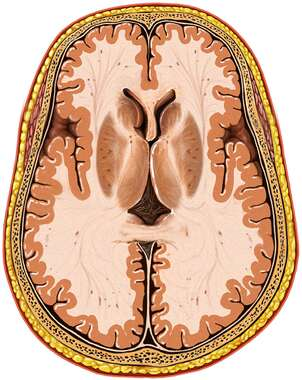 Brain within Skull, Superior Cut-away View