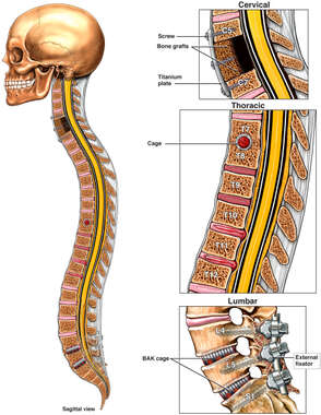 Future Multilevel Surgeries to the Cervical, Thoracic and Lumbar Spine
