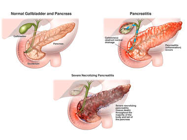 Normal Pancreas, Pancreatitis, and Severe Necrotizing Pancreatitis