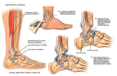 Lateral Ankle Ligament Instability with Surgical Reconstruction