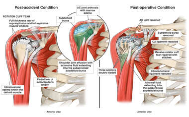 Right Shoulder Conditions