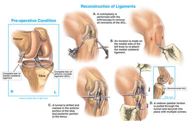 Internal Knee Injuries with Surgical Repairs- Arthroscopic and Open Procedures