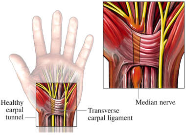 Carpal Tunnel: Healthy and Inflamed