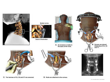 Non-union of Previous Cervical Fusion with Posterior Multilevel Fusion