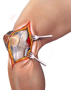 Surgical Exposure in Knee Surgery