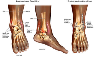 Left Ankle Trimalleolar Ankle Fractures with Subsequent Surgical Fixation