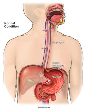 Esophageal Tumor Mass