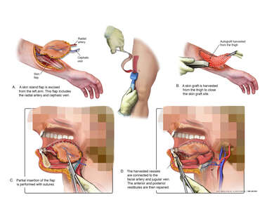 Reconstruction of the Oral Tongue with a Radial Forearm Fasciocutaneous Flap