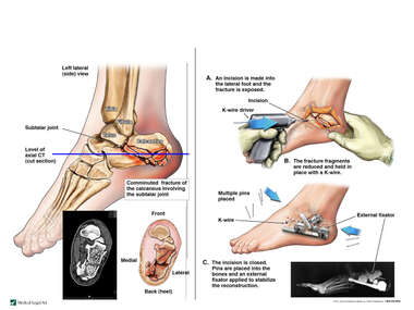 Comminuted Left Calcaneal Fracture with Surgical Fixation