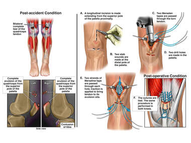 Bilateral Quadriceps Tear with Surgical Repair