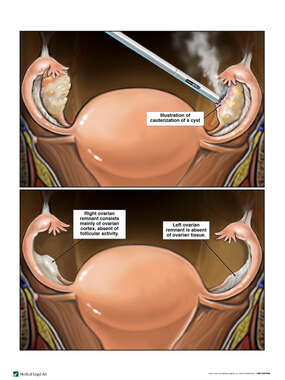 Cauterization of an Ovarian Cyst