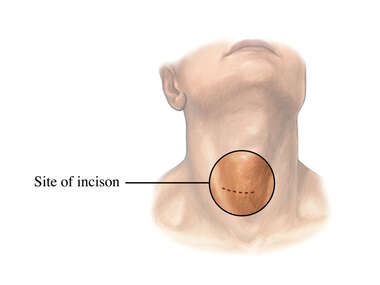 Cervical Discectomy Incision Site
