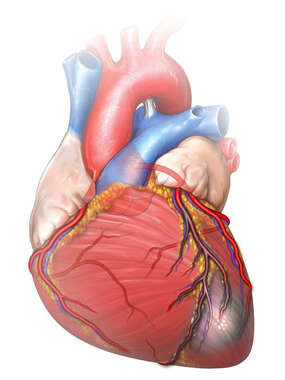 Heart and Coronary Arteries with Infarct of the Proximal LAD
