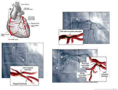 Coronary Arteries with Angiogram Film Depiction
