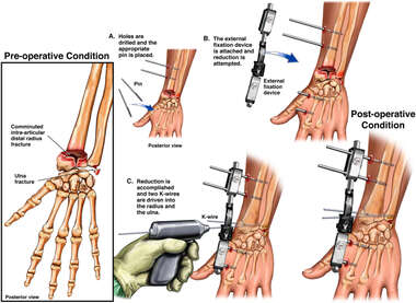 Left Wrist Fractures with Initial External Fixation