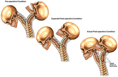 Decreased Post-operative Range of Motion in Cervical Spine
