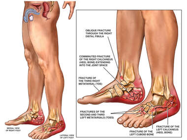 Traumatic Injury to Feet and Ankles Sustained from Fall