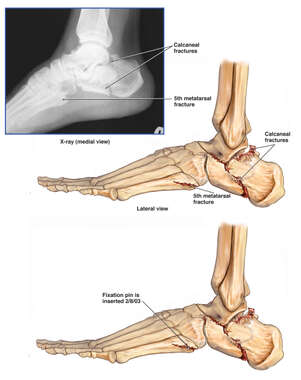 Left Foot Injuries with Surgical Fixation of the Fifth Metatarsal