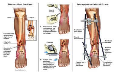 Left Lower Leg Fractures with Initial External Fixation