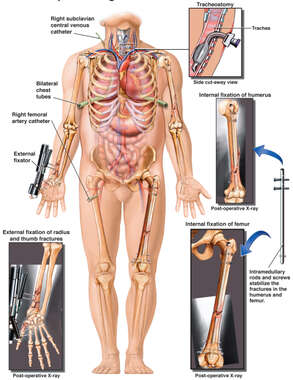 Male Figure with Surgical Images of Wrist External Fixation, Tracheotomy, Arm and Leg Intramedullary Rod-Nail Fixation