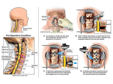 C3-4, C4-5 Anterior Cervical Decompression and Total Disc Replacement