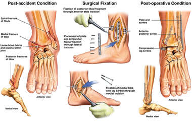 Unstable Comminuted Trimalleolar Left Ankle Fracture with Surgical Fixation