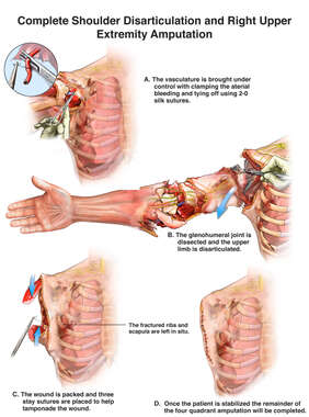 Complete Shoulder Disarticulation and Right Upper Extremity Amputation