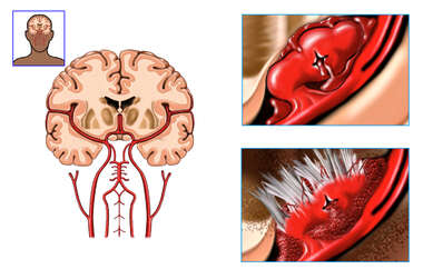 Rupture of Middle Cerebral Artery Aneurysm