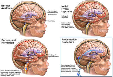 Progression of Hydrocephalus