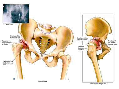 Hip Injury - Fracture of the Acetabulum