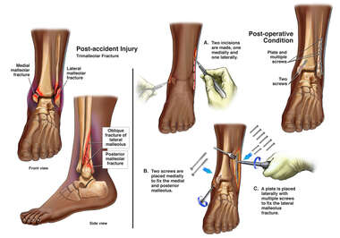 Left Ankle Fractures with Surgical Fixation
