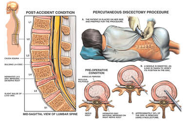 L3-4, L4-5 and L5-S1 Lumbar Disc Injuries with Percutaneous Discectomy