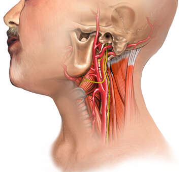 Anatomy of the Neck - Carotid endarterectomy (CEA)