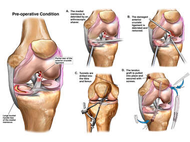 Left Knee Injuries with Surgery