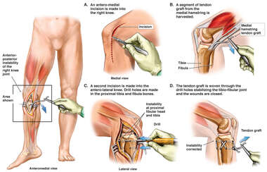Proposed Right Knee Tibiofibular Joint Stabilization Procedure