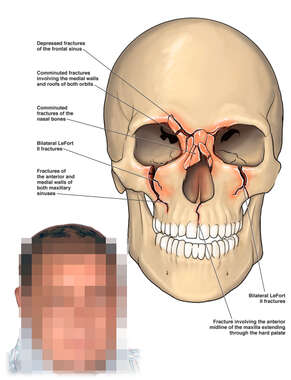 Skull with Multiple Facial Fractures