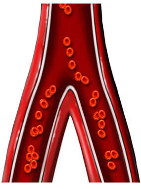 Abdominal Aorta Bifurcation with Red Blood Cells