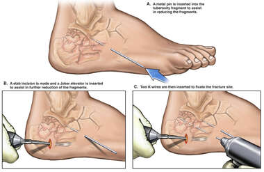 Surgical Repairs of Right Foot Fractures