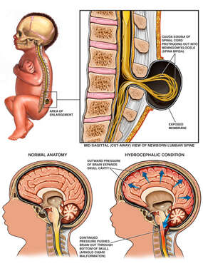 Congenital Birth Defects - Spina Bifida, Hydrocephalus and Arnold-Chiari Malformation