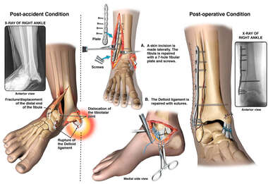 Fracture Dislocation of the Right Ankle with Surgery