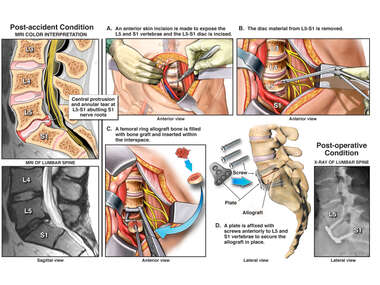 L5-S1, Anterior Lumbar Discectomy and Fusion with Instrumentation