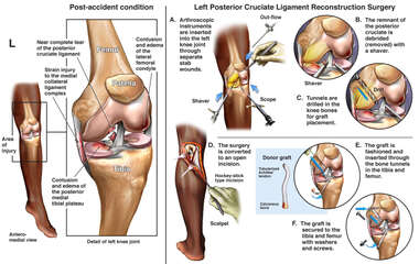 Tear of Posterior Cruciate Ligament and Surgical Repair