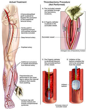 Treatment of Arterial Occlusions
