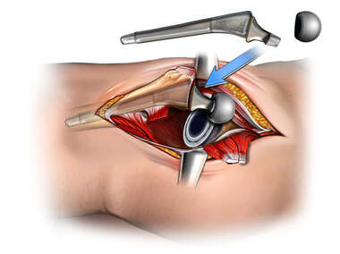 Total Hip Replacement - Insertion of Femoral Stem